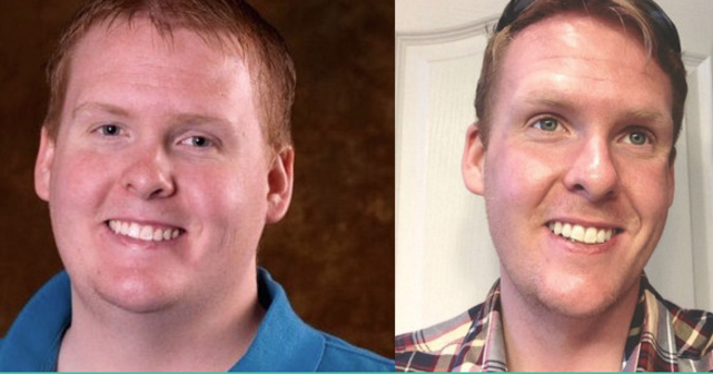 Missionary Loses 160 pounds to serve